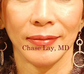 Chin Implant   Before & After Photos